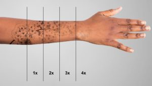Tattoo removal stages - Radiance Aesthetic Clinic, Exeter