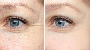 Botox before and after - anti-ageing and anti wrinkle treatment - Radiance Aesthetic Clinic, Exeter