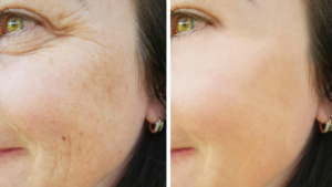 Before and after chemical peel - Radiance Aesthetic Clinic, Exeter, Devon
