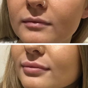 Botox in the lips - Radiance Aesthetic Clinic