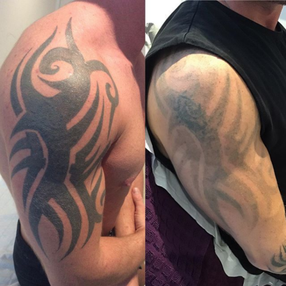 Laser Tattoo Removal - Q-plus C Technology | Radiance ...