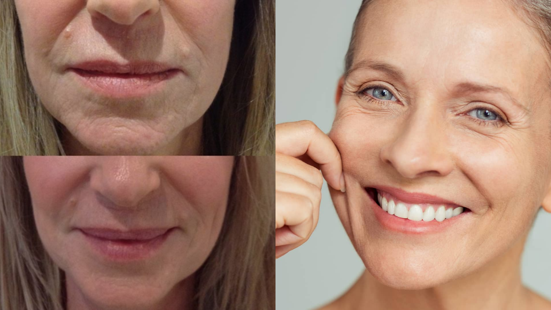 Profhilo injectable aesthetic treatment - before and after - anti ageing and anti wrinkle