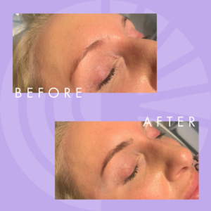 Before and After Henna Brow Treatment - Radiance Aesthetic Clinic Exeter